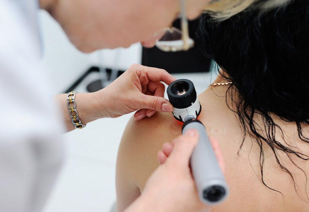 Verão é a época mais propícia ao câncer de pele