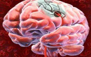 HC realiza 1º cateterismo cerebral para tratar AVC isquêmico