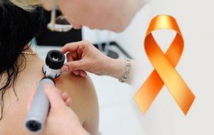 Dezembro é mês de conscientização e alerta sobre câncer de pele