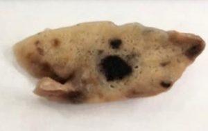 Pesquisa revela dois diferentes padrões de dano no pulmão de vítimas da COVID-19